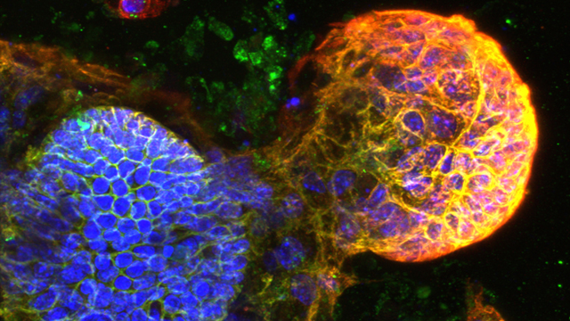 Developing intestinal buds with different colours highlighting the proteins involved in growth