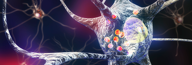 A 3D illustration showing neurons containing Lewy bodies