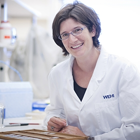 Associate Professor Marie-Liesse Asselin-Labat in the lab
