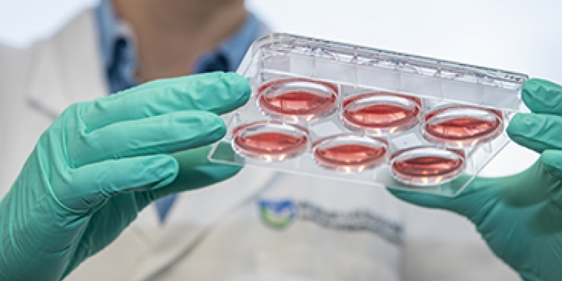 Blood cells being examined in the lab
