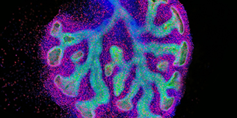 Image of developing lung