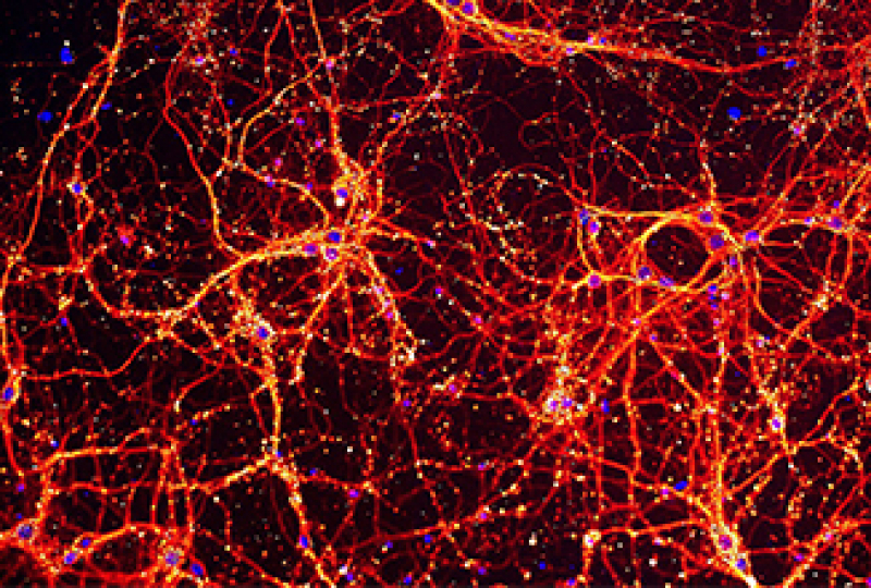Colourful microscopic image of neurons