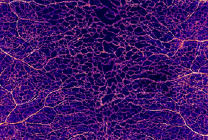Extensive blood vessel networks in the skin