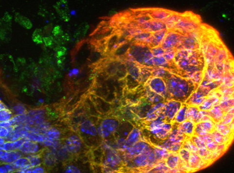 Developing intestinal buds, colours highlight the proteins involved in growth