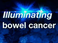 Illuminating bowel cancer logo